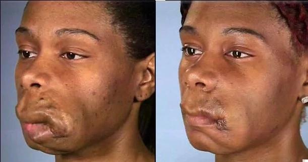 Mujer con deformidad recibe operación para poder comer