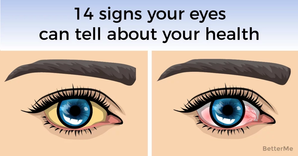 14 things your eyes can reveal about your health