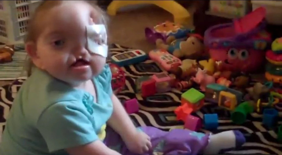 Adorable baby doll born blind in her left eye and has bilateral hearing loss – But she still smiles!