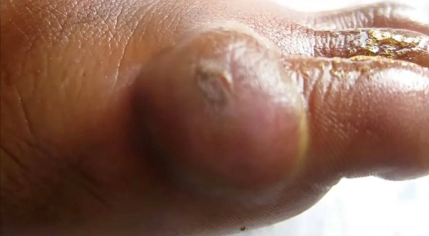 Shocking video of a huge blister getting popped by a doctor