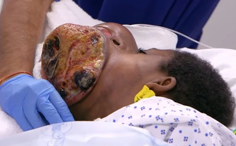 Not a happy ending! Boy, 17, with NO FACE loses his battle for life (photos, video)