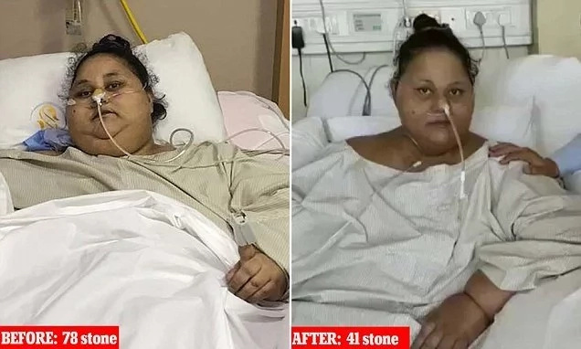 World's heaviest woman sits up for 1st time after losing half her weight
