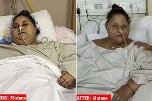 World's heaviest woman sits up for first time after losing HALF her 500kg weight (photos)