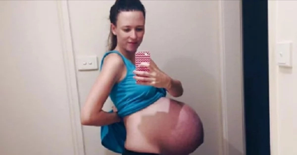 "This Girl Shares A Shocking Story About How Her ""Bump Photo"" Almost Ruin Her Life"