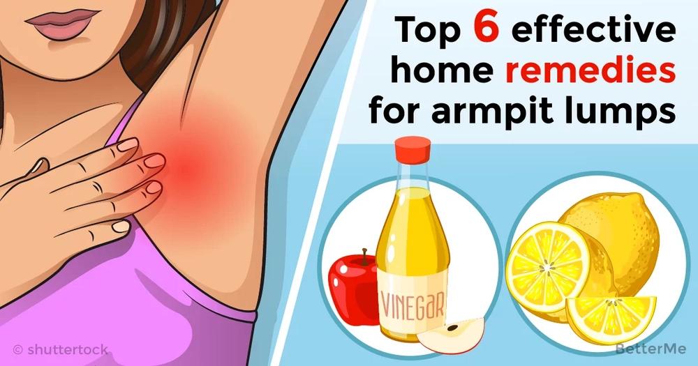 Top 6 effective home remedies for armpit lumps