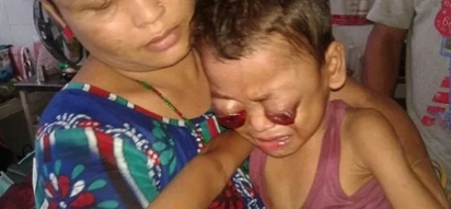 This child's eyes bleed and pop out of his skull! His parents are shocked!