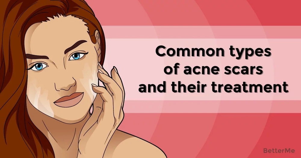 Common types of acne scars and their treatment