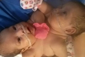 Doctors Weren't Sure These Conjoined Twins Would Survive, But Look At Them Today