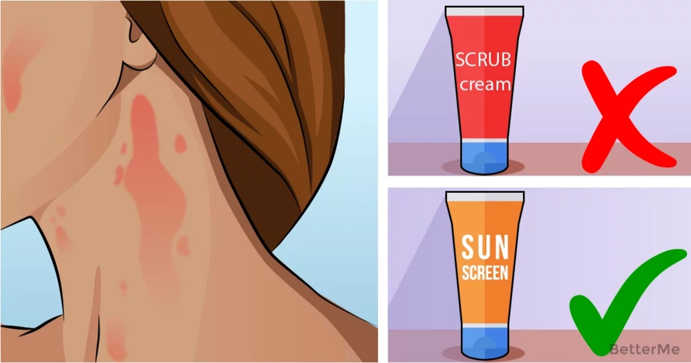 6 reasons of blotchy skin and how to fix it