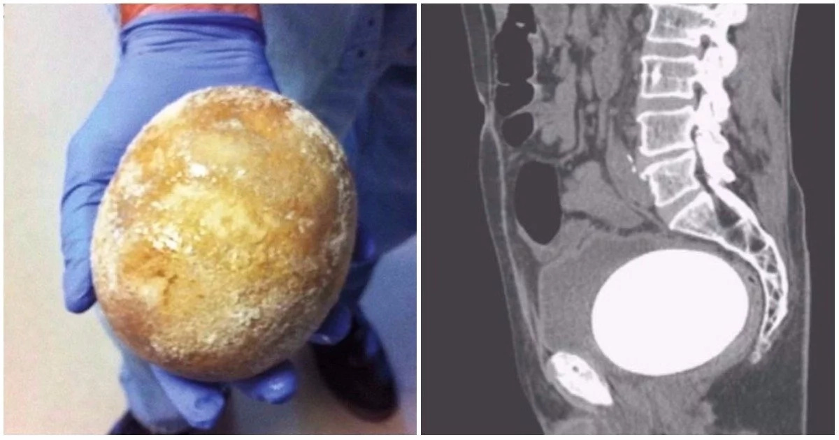 See the huge bladder stone doctors removed from 64-year-old man's tummy after he struggled to urinate (photos)