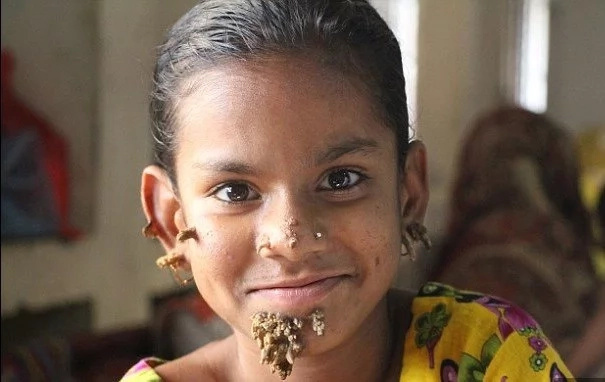 See tree-girl, 10, who has ROOTS on her cheeks, chin and ears (photos, video)