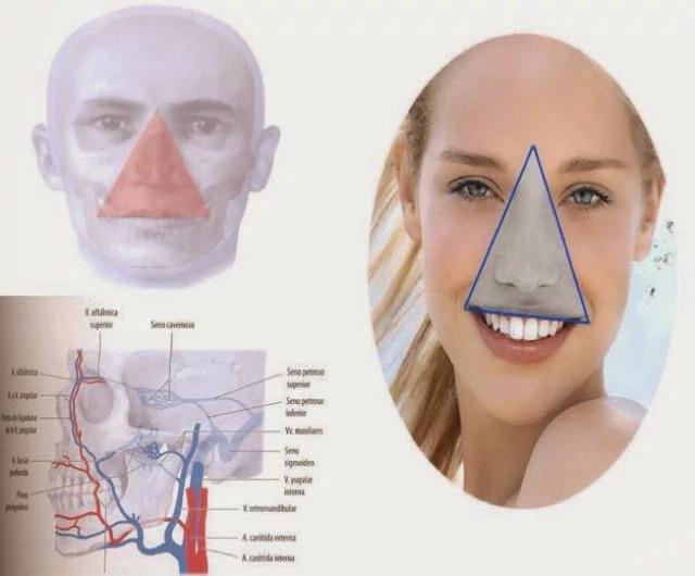 Reventarte los granitos de la cara te puede causar la muerte