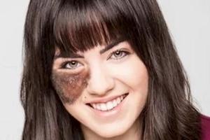Joven de 23 años rechaza remover su marca de nacimiento por la que ha sido acosada por años
