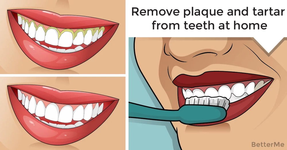 You can naturally remove plaque and tartar from teeth at home