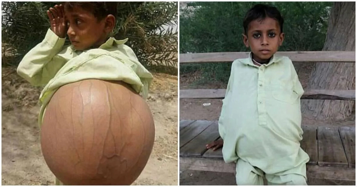 Meet 9-year-old boy who is 'pregnant' due to rare disease (photos, video)