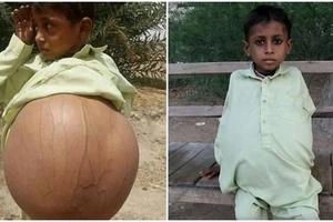 Boy, 9, has stomach size of a BEACH BALL due to rare disease that blocks bowel movement (photos, video)