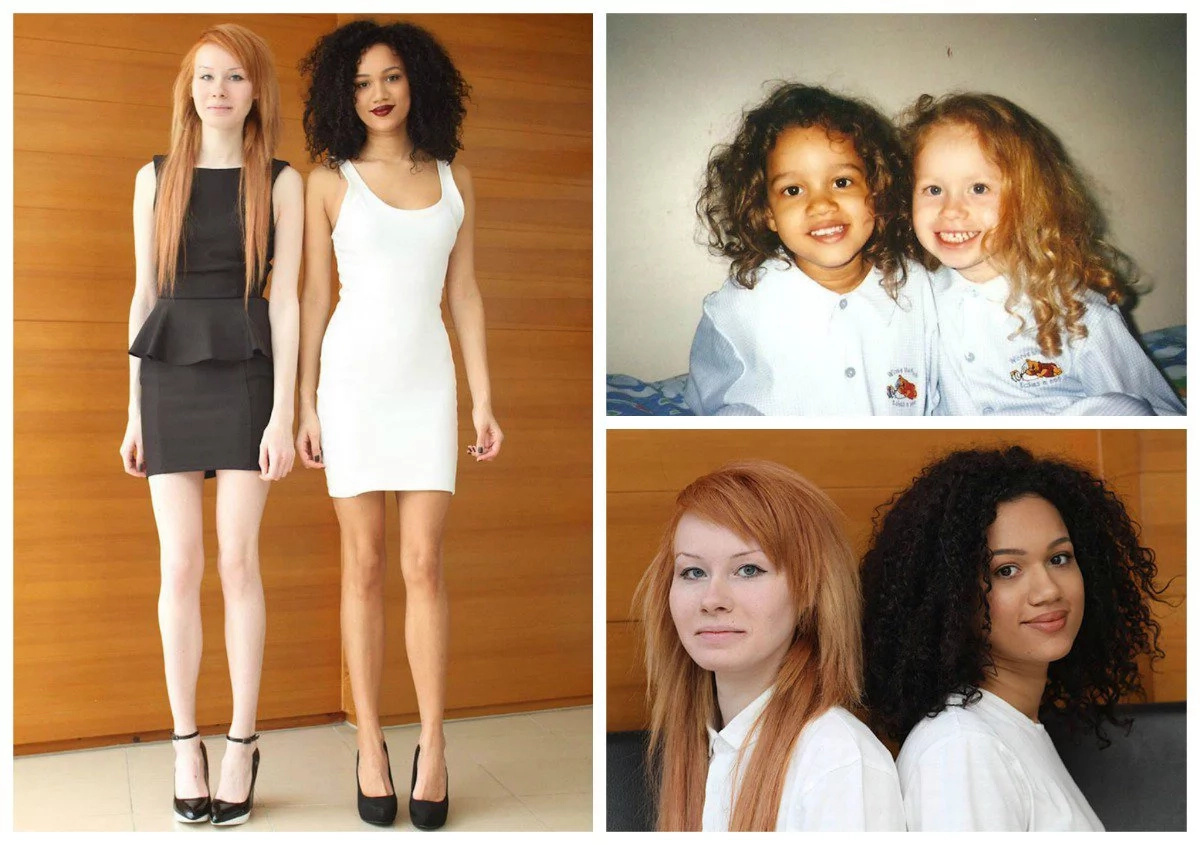 Meet Black And White Twin Sisters Born With Different Skin Colour (photos)