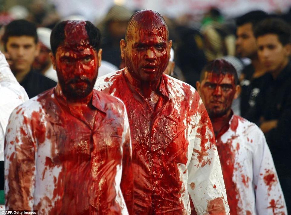 Cortan con cuchillos la cabeza de los niños para un ritual