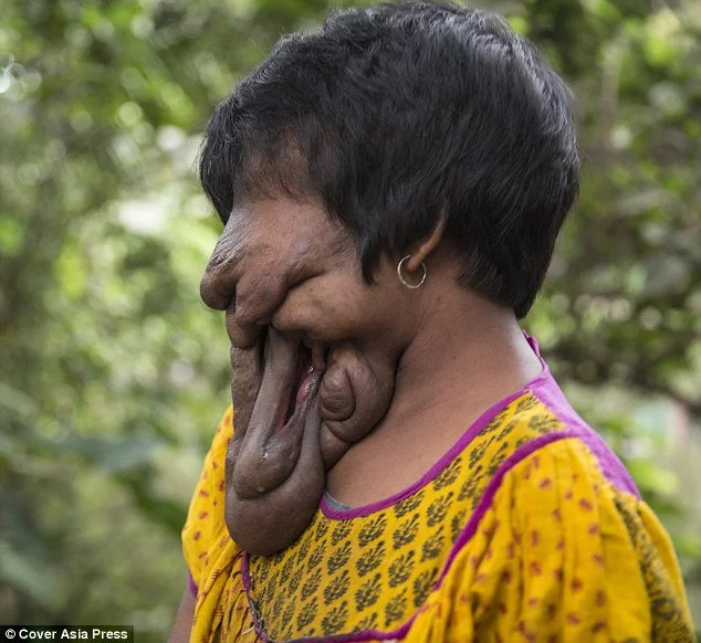 Woman With No Face To Undergo Life-Changing Operation