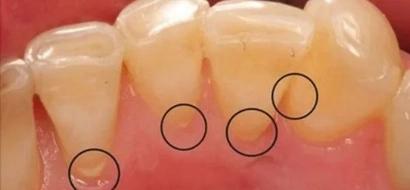 ¡El Aceite de Coco podría salvar tus dientes y hacer que ahorres un montón de dinero!