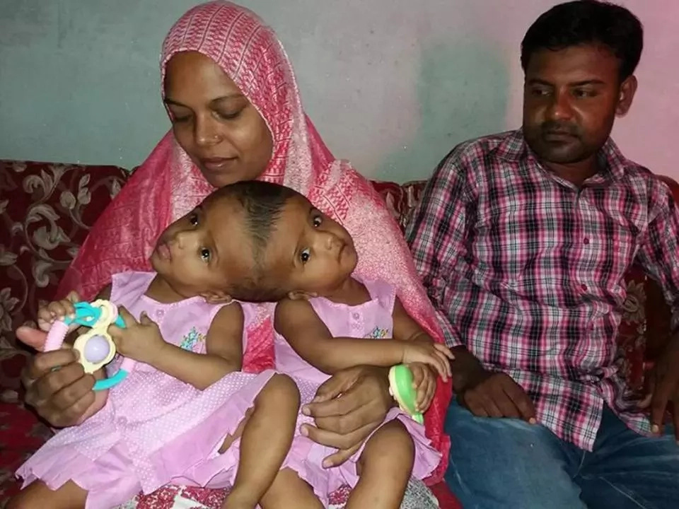The twins with their mother Taslima and their father Mohammed. Photo: Barcroft