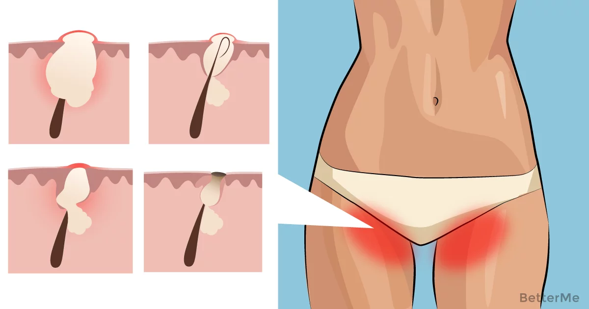 7 alarming reasons you should never, ever wax or shave