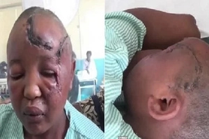 Heartbrealing: This man choppes his wife's hands over fertility problems (photos, video)