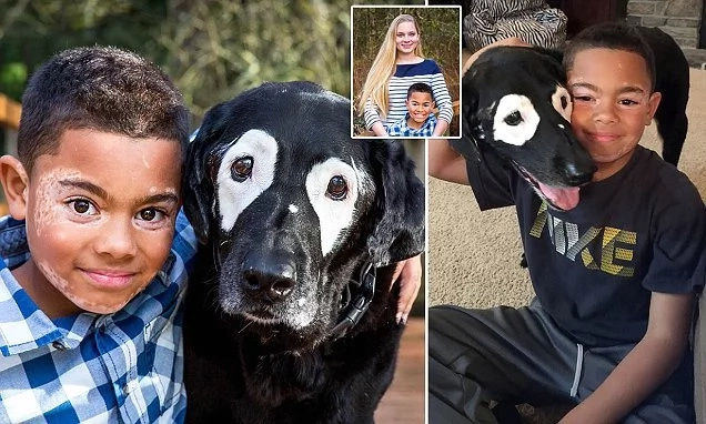 Inseparable! See 8-year-old boy who forged special bond with dog with SAME skin condition (photos)