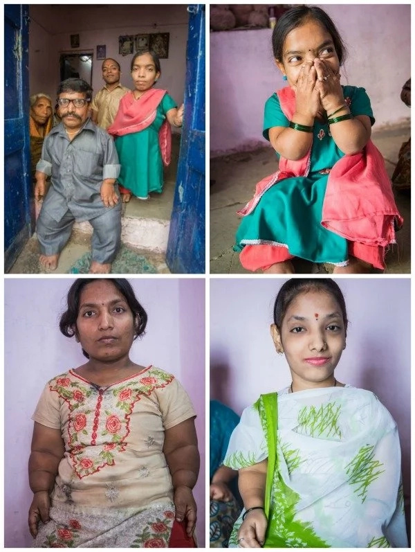 Meet dwarf family: 9 members of a family are so small they are TEASED by everyone (photos, video)