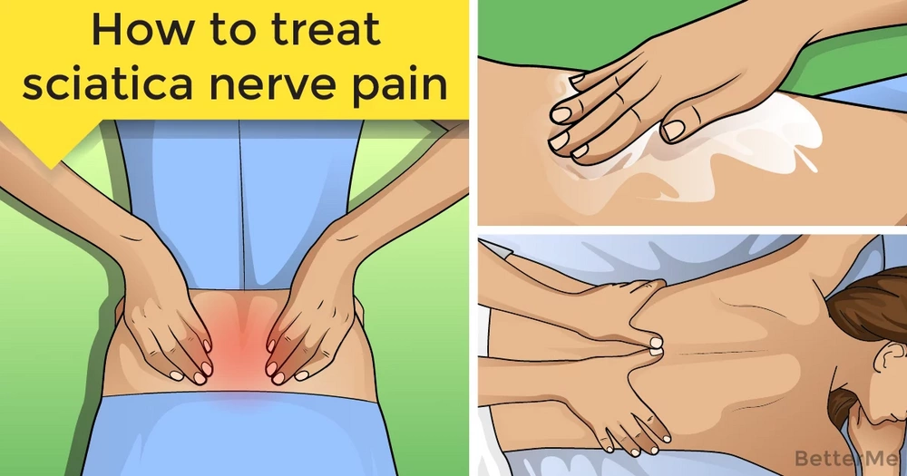 How to treat sciatica nerve pain at home
