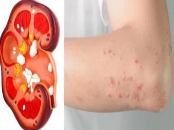 If Your Kidney Is Telling You Something, Please Don't Ignore! Early Signs If Your Kidney Is In Trouble!