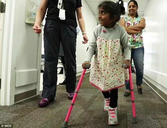 Girl, 5, with cerebral palsy walks for the first time after surgery
