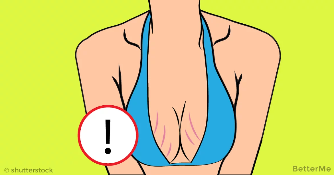 Standard breast implants sizes do not cause stretch marks columbus oh