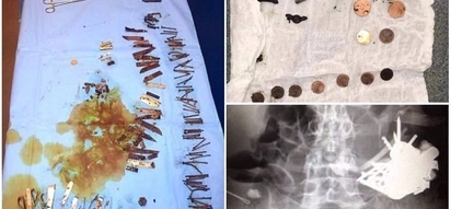 Sad! Doctors remove over 100 pieces of metal from mentally ill man's stomach