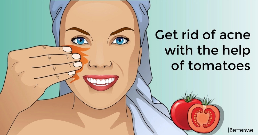Get rid of acne with the help of tomatoes