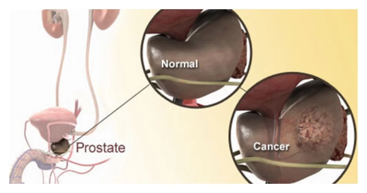 REVEALED! Why more black men die of prostate cancer compared to whites. Find out why (details)
