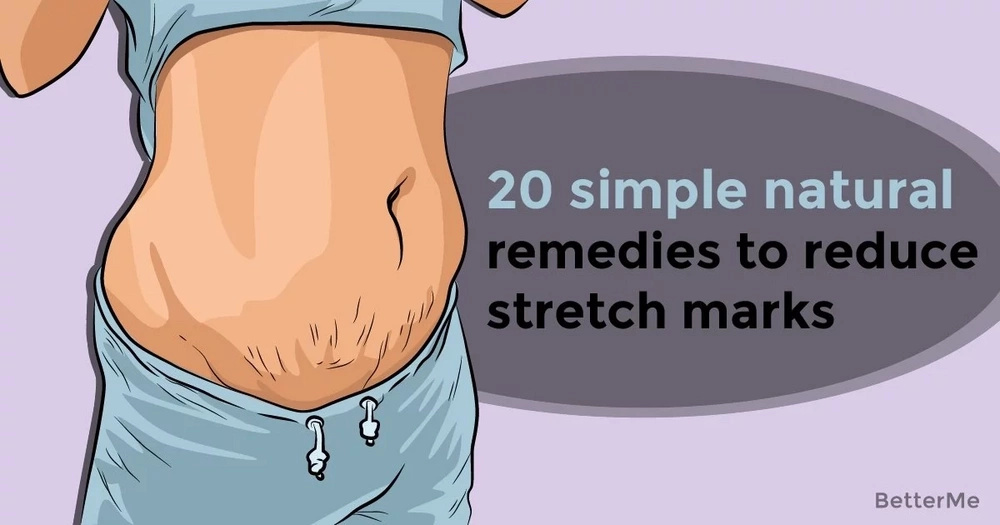 20 simple natural remedies to reduce stretch marks