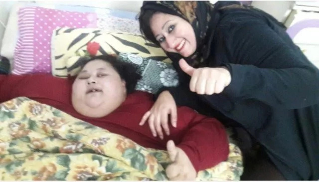 Half-ton woman loses 30 KILOS in one week before life-saving operation (photos, video)