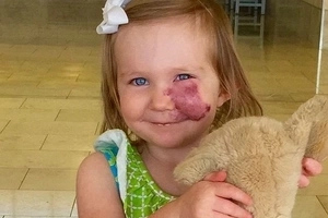 He Stared At 2-Year Old Girl Birthmark, But Her Response Was Perfect...