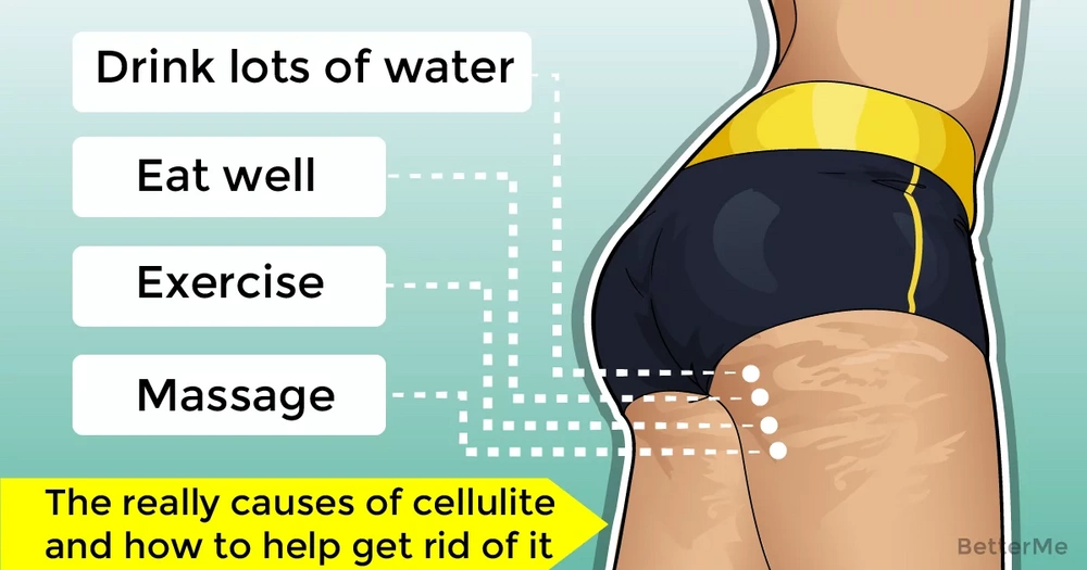 The truth about what really causes cellulite and how to help get rid of it
