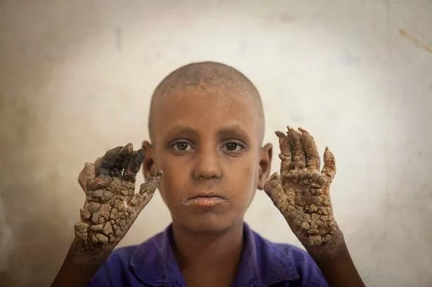Young boy turns into a living tree due to rare disease (PHOTOS)