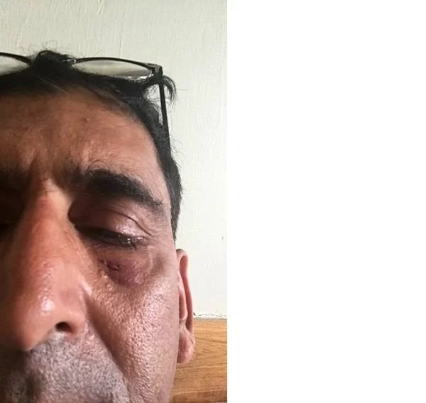 ODM MP beaten in parliament admitted in Nairobi Hospital (photos)