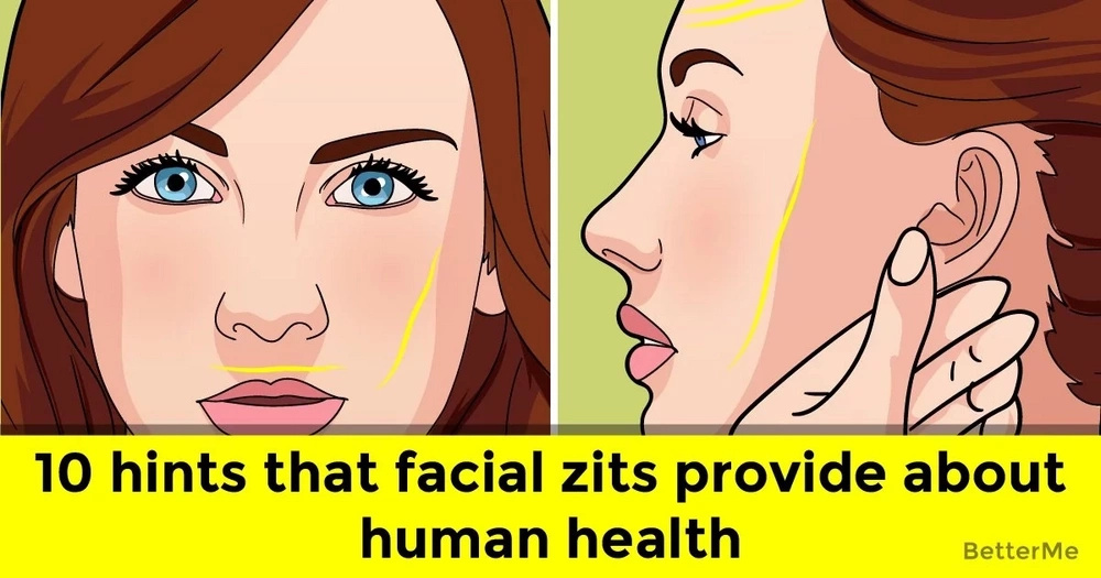 10 hints that facial zits provide about human health