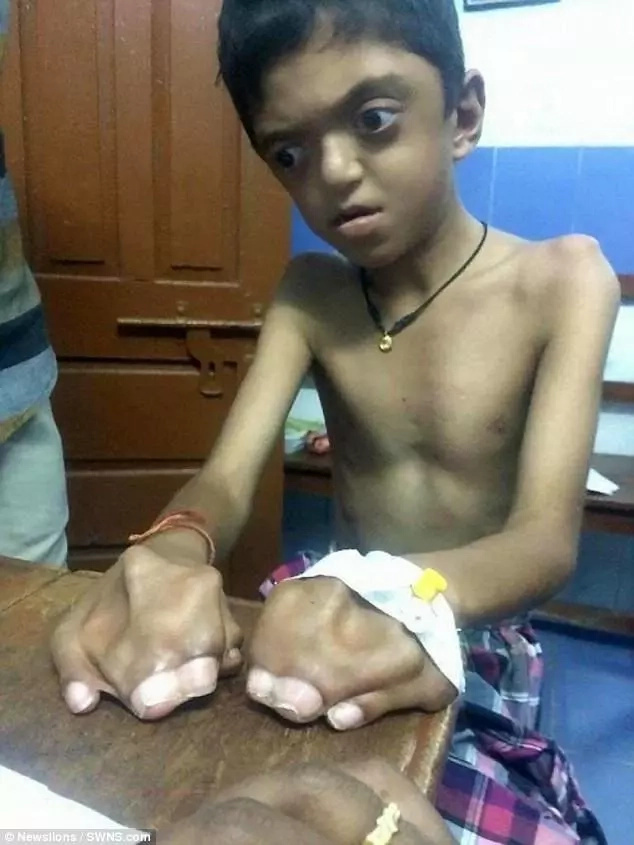 Boy, 8, suffers from extremely rare genetic disorder that has caused his fingers and toes to fuse