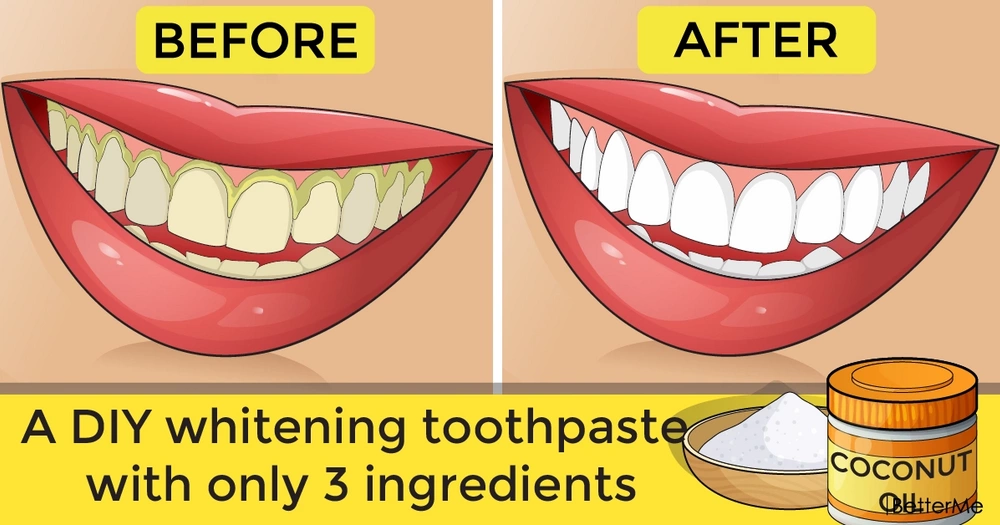 A DIY whitening toothpaste with only 3 ingredients
