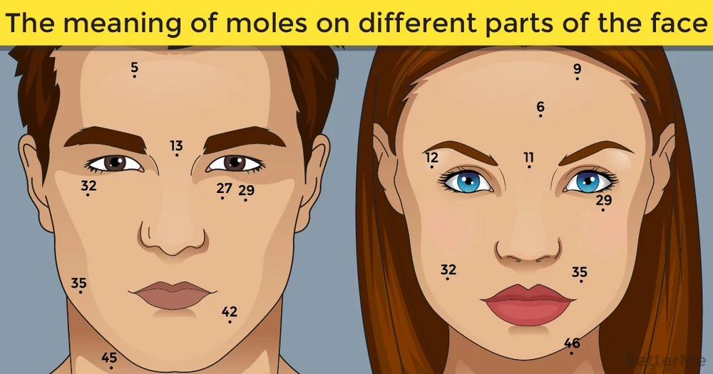 The Meaning Of Moles On Different Parts Of The Face