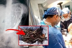 Woman suffered severe abdominal pain. When doctors saw her X-ray results, they immediately scheduled her urgent operation...