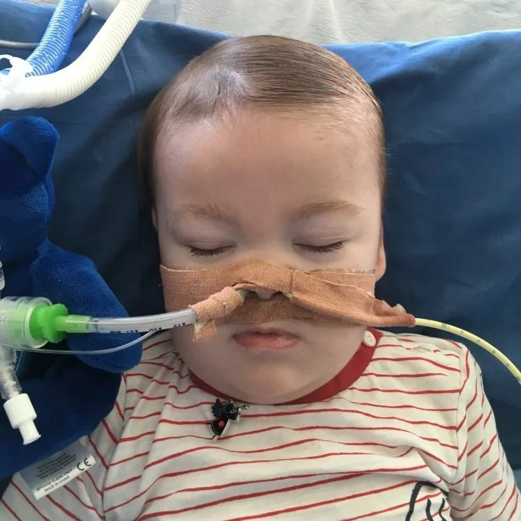 Forget about Charlie Gard's case! Another baby with mitochondrial condition is battling for dear life