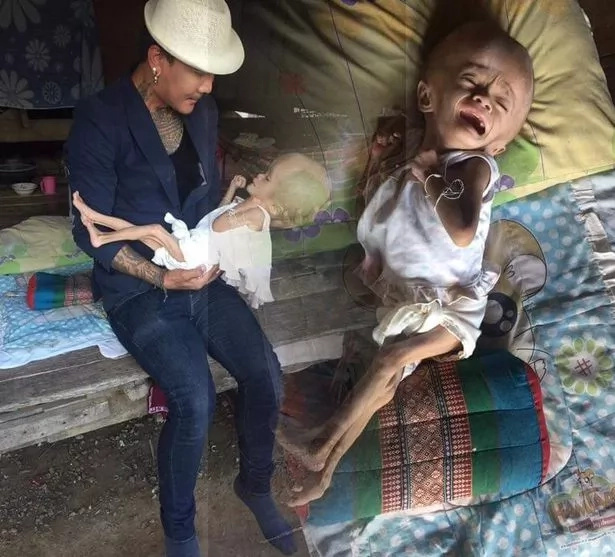 See 2-year-old girl who was born with oversized head in desperate need of help (photos)