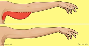 Effective arm exercises for women can help to lose arm fat